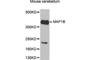 Image no. 1 for anti-Microtubule-Associated Protein 1B (MAP1B) antibody (ABIN1680748)