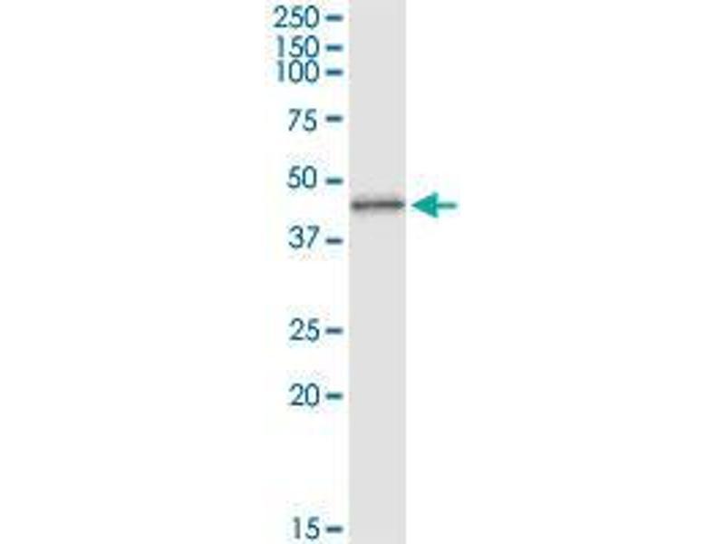 Immunoprecipitation (IP) image for anti-Mitogen-Activated Protein Kinase 3 (MAPK3) (AA 279-379) antibody (ABIN393694)