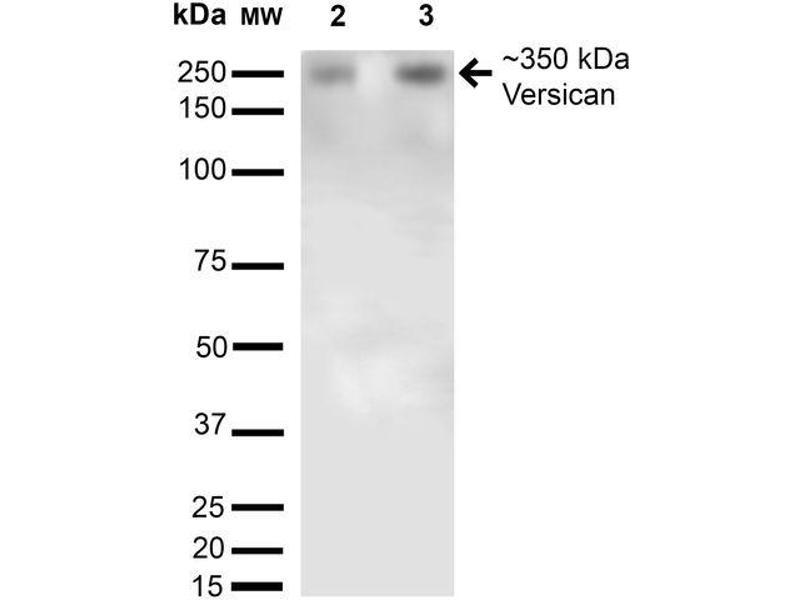 Western Blotting (WB) image for anti-Versican (Vcan) (AA 362-585) antibody (APC) (ABIN2485744)