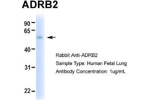 Image no. 1 for anti-Adrenergic, beta-2-, Receptor, Surface (ADRB2) (Middle Region) antibody (ABIN2792089)