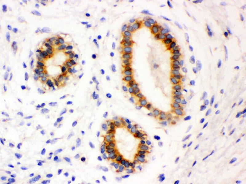 Immunohistochemistry (IHC) image for anti-B-Cell CLL/lymphoma 2 (BCL2) (AA 41-54) antibody (ABIN3044481)