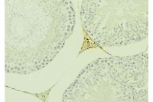 Image no. 2 for anti-Eppin (SPINLW1) antibody (ABIN6265261)