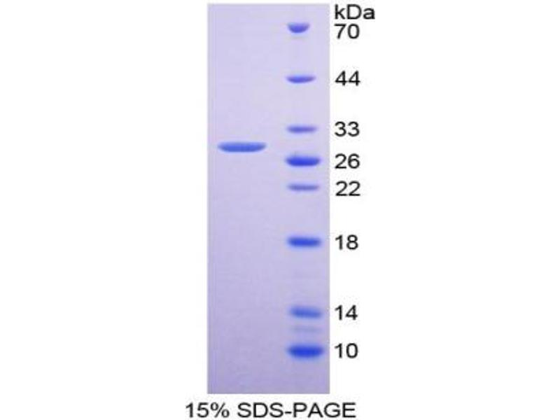 Platelet-Derived Growth Factor Receptor, alpha Polypeptide (PDGFRA) ELISA Kit (3)