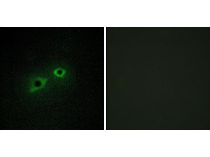 Image no. 2 for anti-Transmembrane Protease, serine 15 (TMPRSS15) antibody (ABIN1576281)