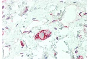 Image no. 5 for anti-Solute Carrier Family 38 Member 3 (SLC38A3) (N-Term) antibody (ABIN2775351)