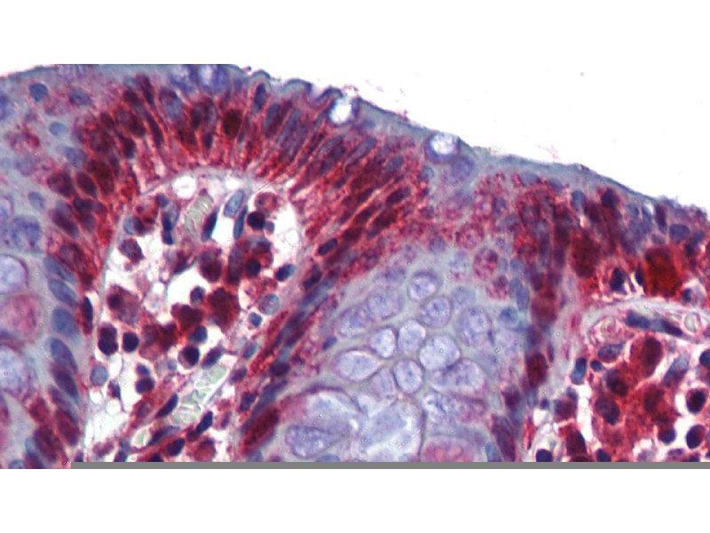 Immunohistochemistry (IHC) image for anti-RNA Binding Motif Protein 47 (RBM47) (Middle Region) antibody (ABIN502042)