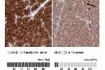 Immunohistochemistry (Paraffin-embedded Sections) (IHC (p)) image for anti-Non-SMC Element 1 Homolog (S. Cerevisiae) (NSMCE1) antibody (ABIN4340767)