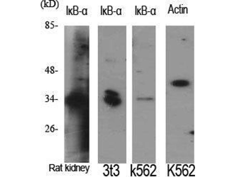 Western Blotting (WB) image for anti-Nuclear Factor of kappa Light Polypeptide Gene Enhancer in B-Cells Inhibitor, alpha (NFKBIA) (N-Term) antibody (ABIN3185247)