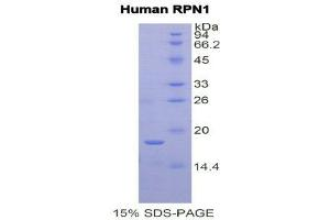 Image no. 1 for Ribophorin 1 (RPN1) (AA 308-438) protein (His tag) (ABIN1877920)