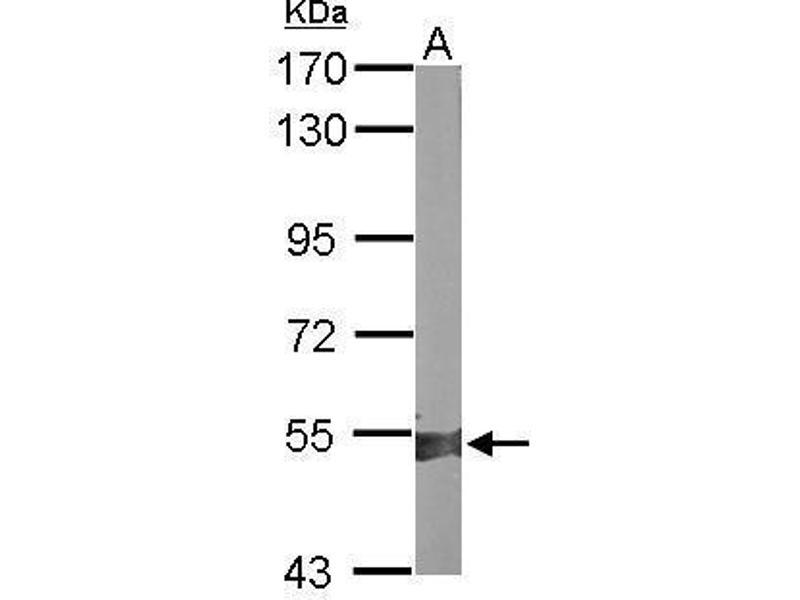 Western Blotting (WB) image for anti-Aldehyde Dehydrogenase 1 Family, Member A2 (ALDH1A2) (Center) antibody (ABIN2856988)