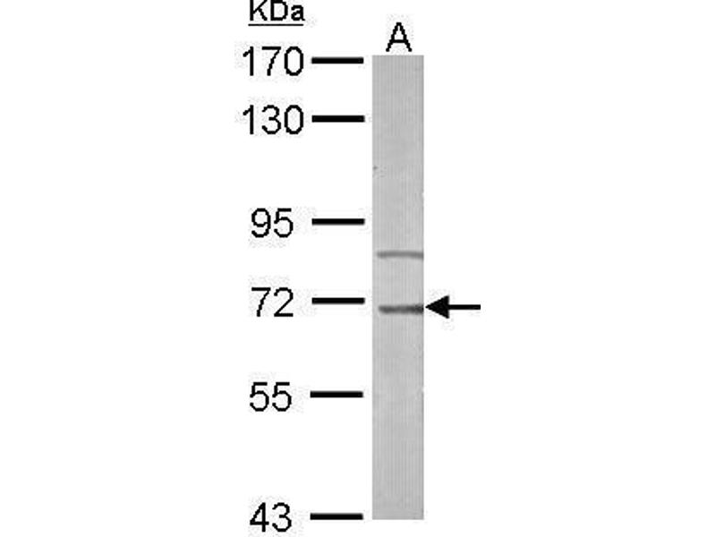 Western Blotting (WB) image for anti-Interleukin-1 Receptor-Associated Kinase 3 (IRAK3) (Center) antibody (ABIN2855791)