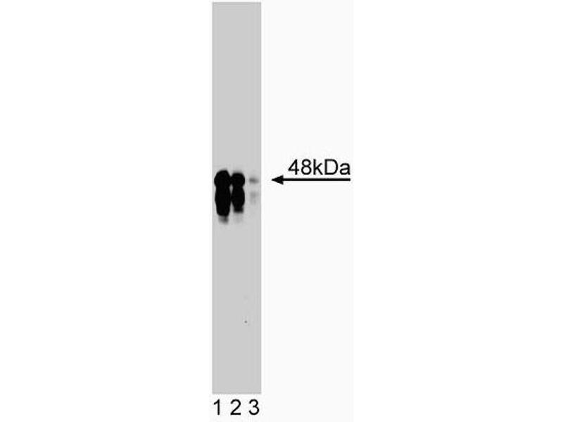 Western Blotting (WB) image for anti-IKBKG antibody (Inhibitor of kappa Light Polypeptide Gene Enhancer in B-Cells, Kinase gamma) (AA 278-396) (ABIN968464)
