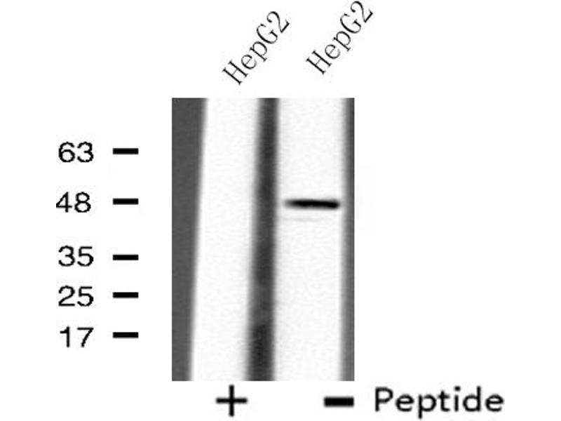 Western Blotting (WB) image for anti-UDP-Gal:betaGlcNAc beta 1,4- Galactosyltransferase, Polypeptide 3 (B4GALT3) antibody (ABIN6258613)