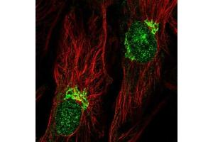 Immunofluorescence (IF) image for anti-Calcium Channel, Voltage-Dependent, P/Q Type, alpha 1A Subunit (CACNA1A) antibody (ABIN4286740)