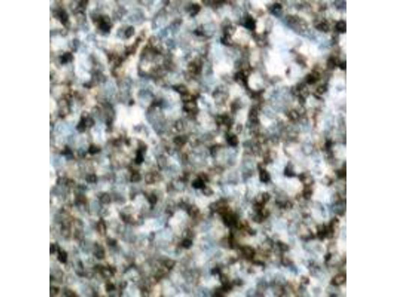 Immunohistochemistry (IHC) image for anti-Cas-Br-M (Murine) Ecotropic Retroviral Transforming Sequence (CBL) (C-Term), (pTyr700) antibody (ABIN2704545)