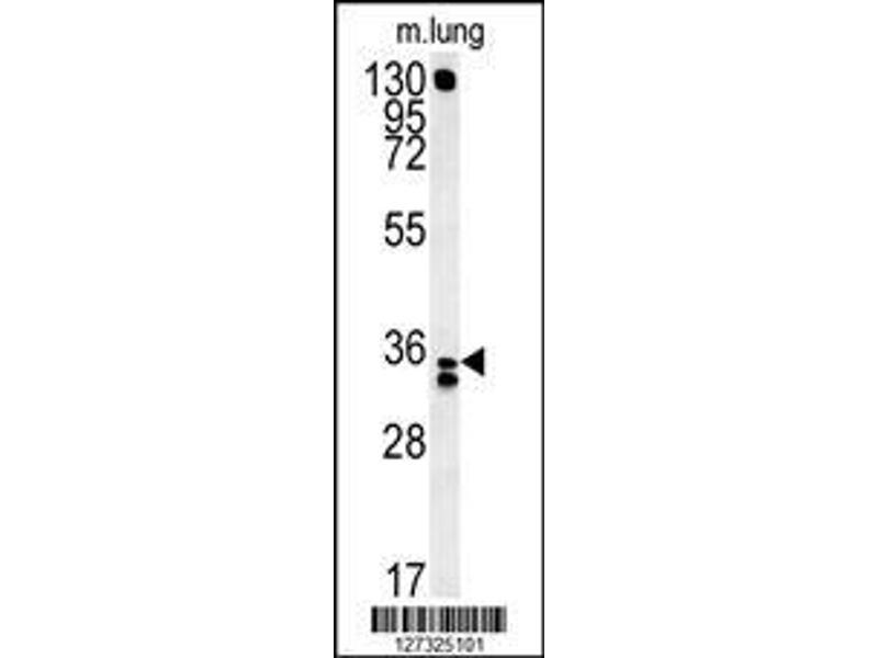 Western Blotting (WB) image for anti-Reticulocalbin 3, EF-Hand Calcium Binding Domain (RCN3) (AA 134-163), (Center) antibody (ABIN651973)