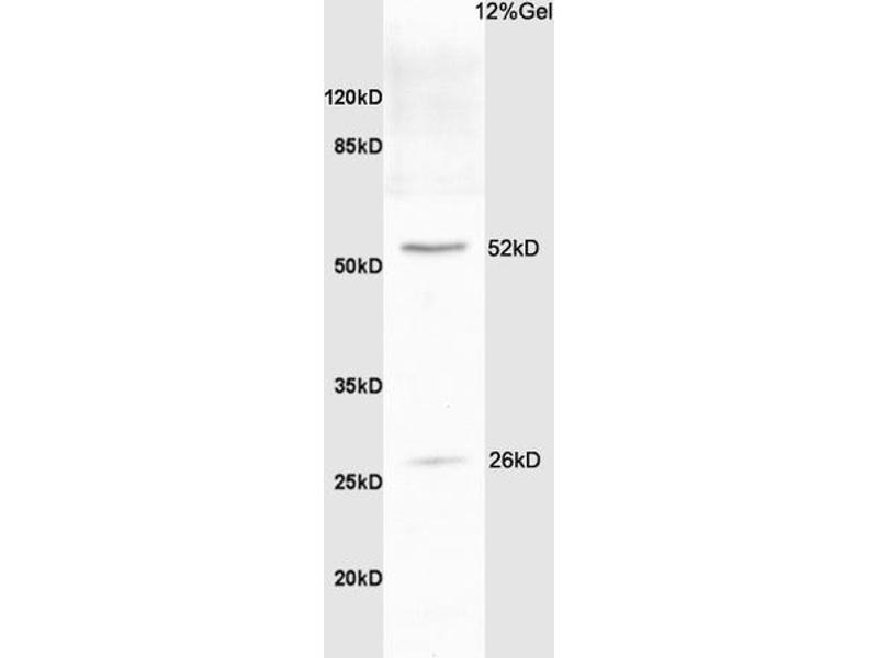 SDS-PAGE (SDS) image for anti-BCL2-Like 1 (BCL2L1) (AA 70-120) antibody (ABIN675129)