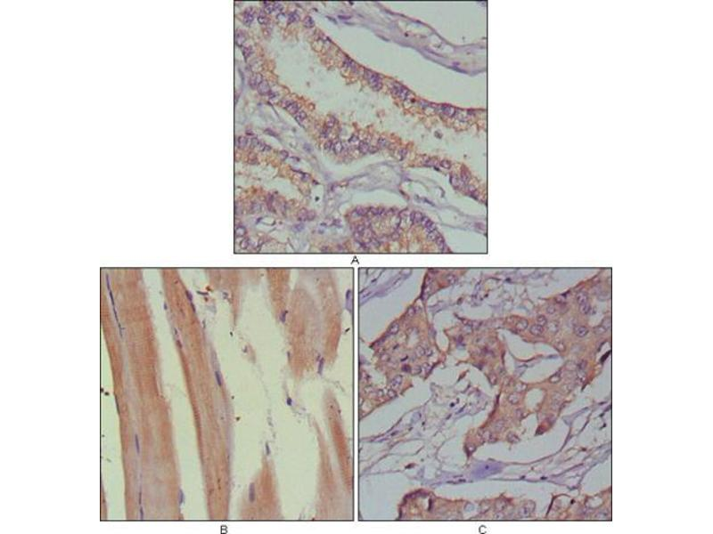 Immunohistochemistry (IHC) image for anti-MUSK antibody (Muscle, Skeletal, Receptor Tyrosine Kinase) (AA 24-209) (ABIN969299)