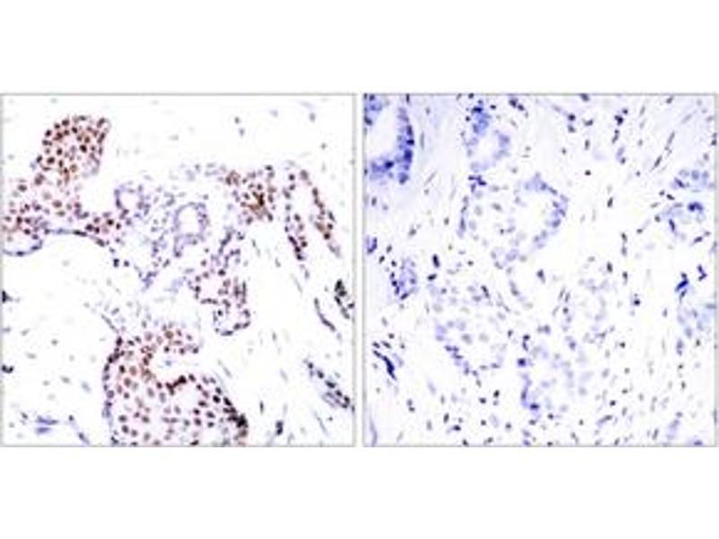 Immunohistochemistry (IHC) image for anti-ELK1, Member of ETS Oncogene Family (ELK1) (AA 356-405), (pSer389) antibody (ABIN1531827)