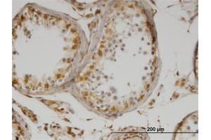 Immunohistochemistry (Formalin-fixed Paraffin-embedded Sections) (IHC (fp)) image for anti-IL-13 antibody (Interleukin 13) (ABIN517111)