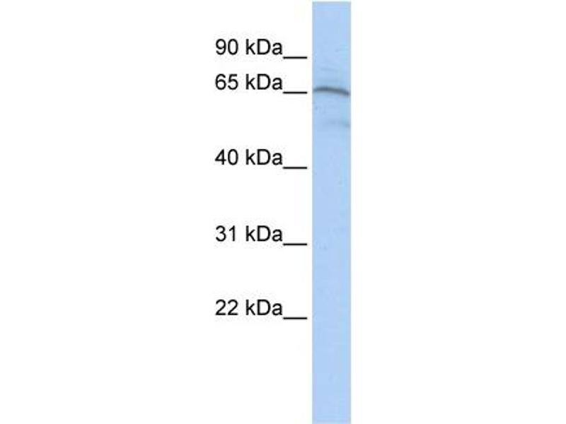 Western Blotting (WB) image for anti-AIFM1 antibody (Apoptosis-Inducing Factor, Mitochondrion-Associated, 1) (Middle Region) (ABIN2792122)