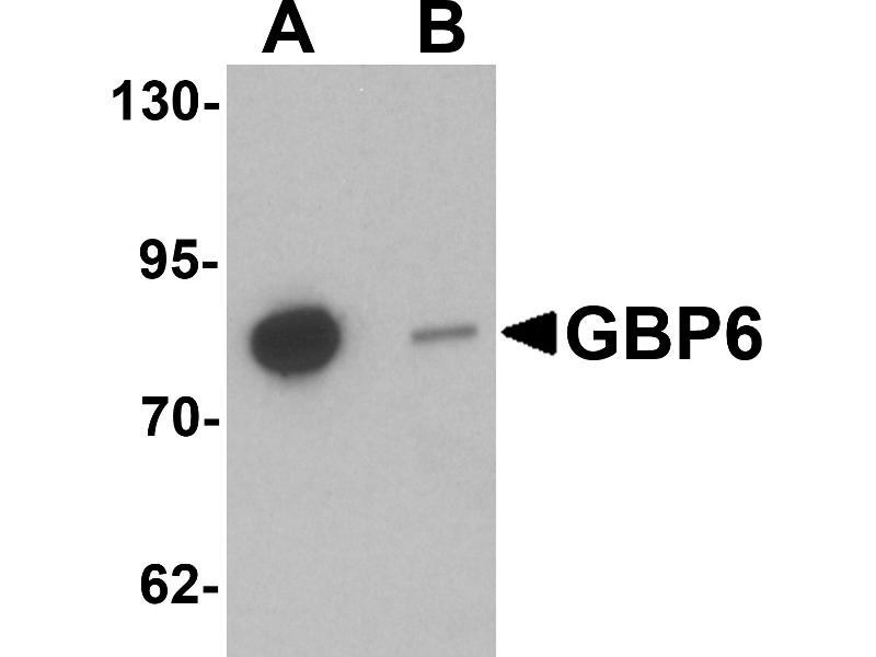 Western Blotting (WB) image for anti-Guanylate Binding Protein 6 (GBP6) (C-Term) antibody (ABIN1030410)