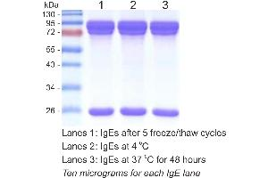 SDS-PAGE (SDS) image for anti-Der P1 Protein 抗体 (ABIN2831309)