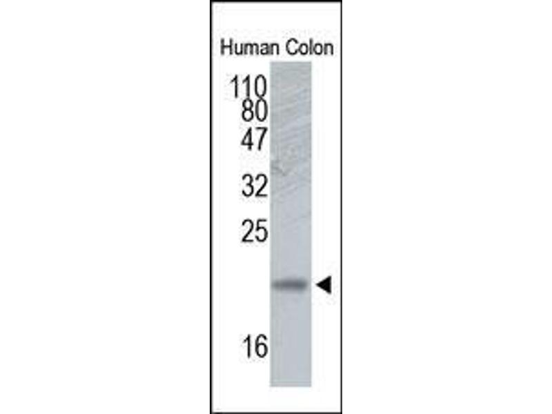 Western Blotting (WB) image for anti-RHOA antibody (Ras Homolog Gene Family, Member A) (N-Term) (ABIN1585792)