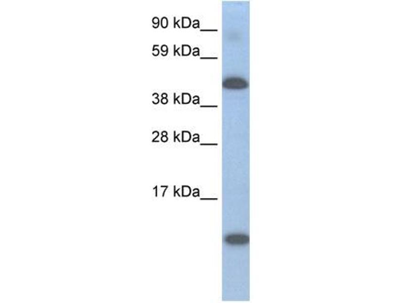 Western Blotting (WB) image for anti-Ligand Dependent Nuclear Receptor Corepressor (Lcor) (N-Term) antibody (ABIN2780126)