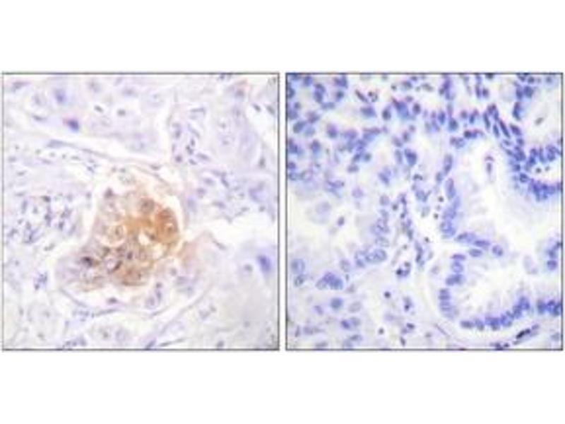Immunohistochemistry (IHC) image for anti-Interleukin 2 Receptor, beta (IL2RB) (AA 331-380) antibody (ABIN1532690)