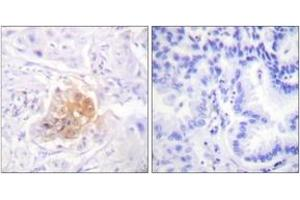 Immunohistochemistry (IHC) image for anti-Interleukin 2 Receptor, beta (IL2RB) (AA 331-380) antibody (ABIN1532690)