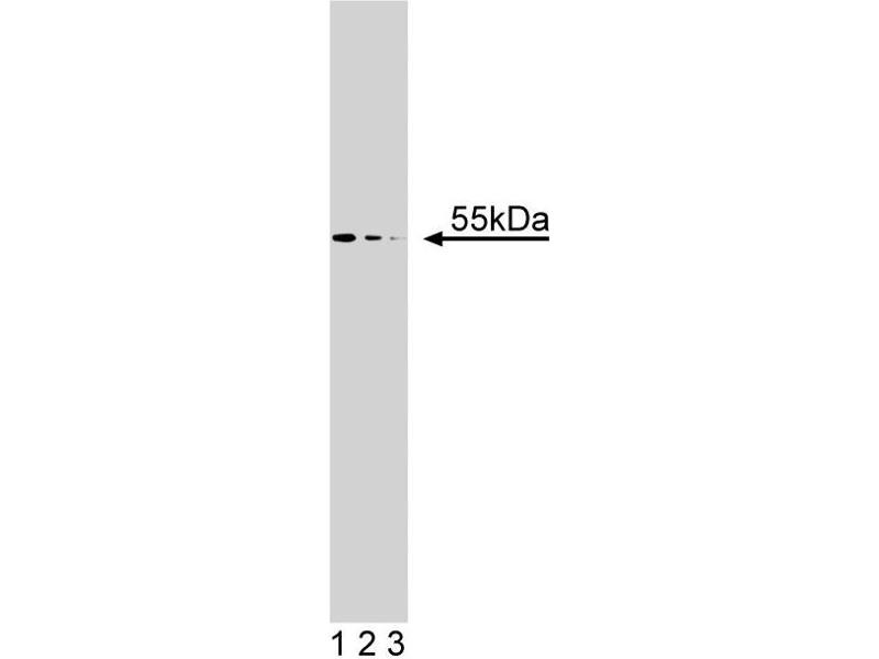 Western Blotting (WB) image for anti-beta Arrestin 1 antibody (Arrestin, beta 1) (AA 262-409) (ABIN968033)
