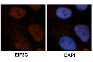 Image no. 3 for anti-Eukaryotic Translation Initiation Factor 3, Subunit G (EIF3G) antibody (ABIN5577163)