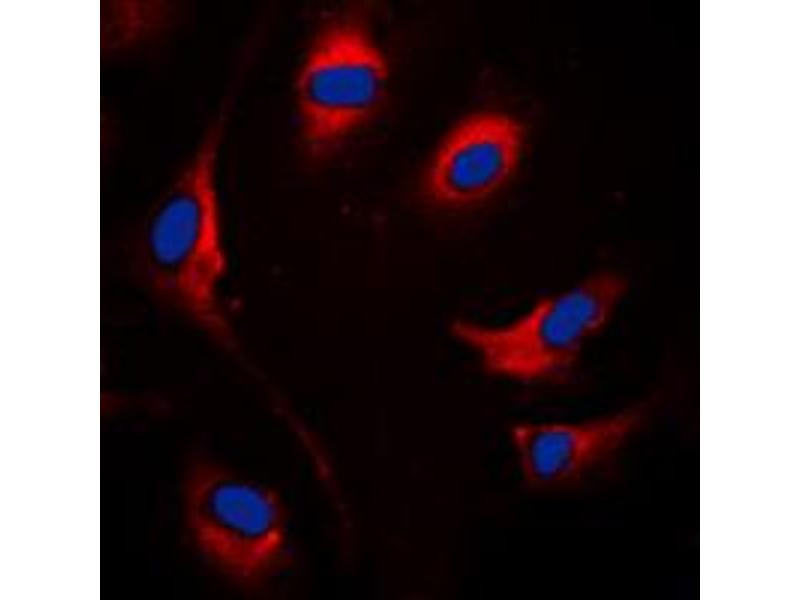 Immunofluorescence (IF) image for anti-SOCS1 antibody (Suppressor of Cytokine Signaling 1) (Center) (ABIN2707084)