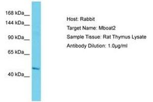 Image no. 1 for anti-Membrane Bound O-Acyltransferase Domain Containing 2 (MBOAT2) (AA 151-200) antibody (ABIN6750316)