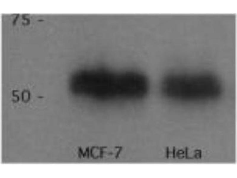 Western Blotting (WB) image for anti-p53 antibody (Tumor Protein P53) (AA 14-389) (ABIN152249)