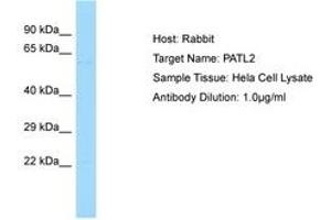 Image no. 1 for anti-Protein Associated with Topoisomerase II Homolog 2 (Yeast) (PATL2) (AA 313-362) antibody (ABIN6750126)