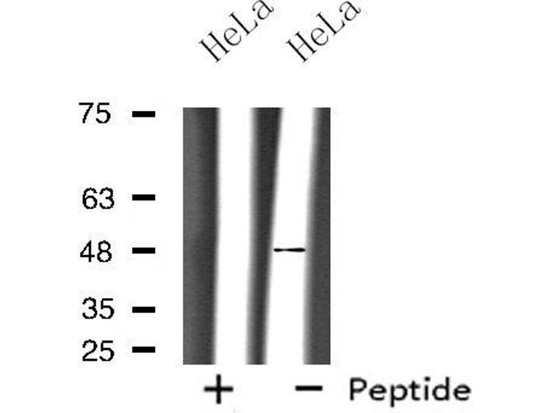 Western Blotting (WB) image for anti-Opioid Receptor, mu 1 (OPRM1) antibody (ABIN6257397)