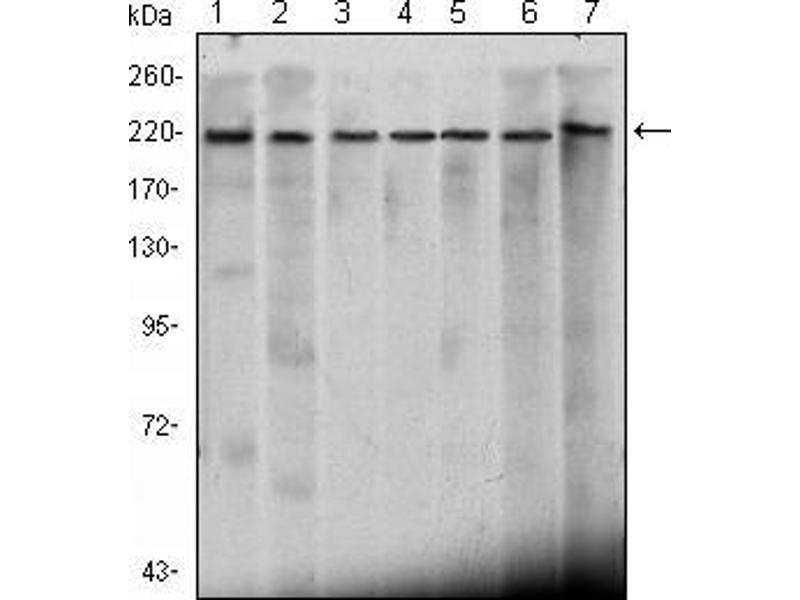 Western Blotting (WB) image for anti-CHD3 antibody (Chromodomain Helicase DNA Binding Protein 3) (ABIN969052)