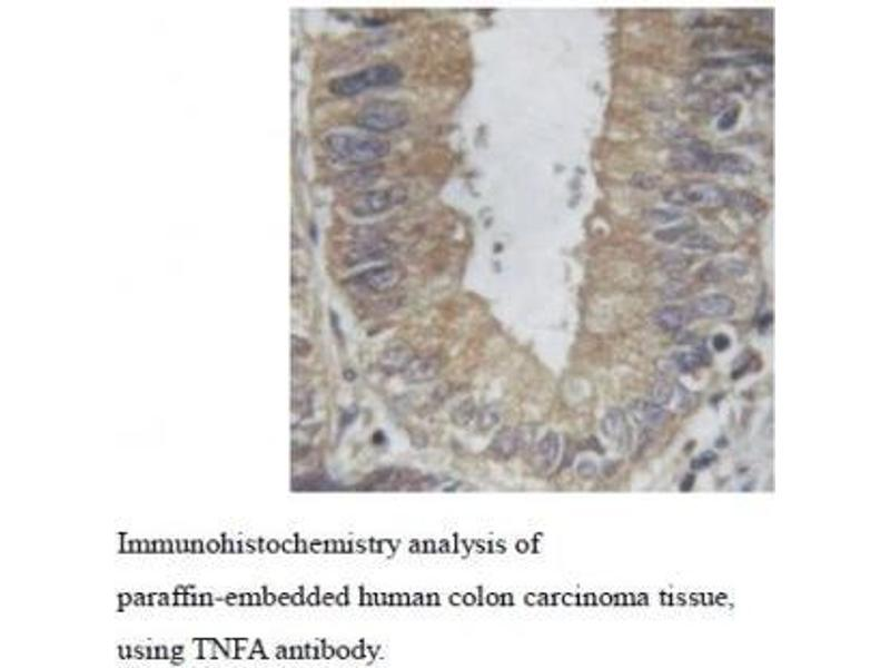 Immunohistochemistry (IHC) image for anti-Tumor Necrosis Factor (TNF) antibody (ABIN1846088)