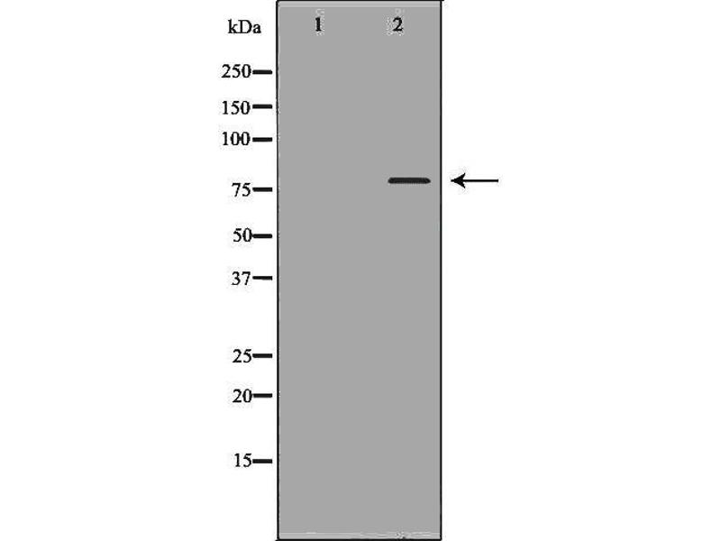 Western Blotting (WB) image for anti-Toll-Like Receptor Adaptor Molecule 1 (TICAM1) antibody (ABIN6265566)
