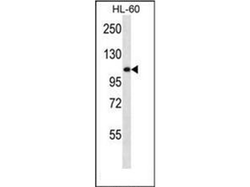 Western Blotting (WB) image for anti-alpha-Glucosidase (AGLU) (AA 173-203), (N-Term) antibody (ABIN950380)