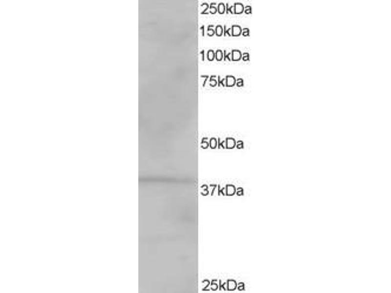 Western Blotting (WB) image for anti-Vacuolar Protein Sorting 26 Homolog A (S. Pombe) (VPS26A) (C-Term), (Isoform 1) antibody (ABIN250155)
