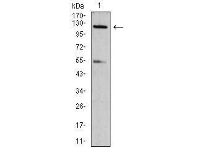 Western Blotting (WB) image for anti-NLR Family, CARD Domain Containing 4 (NLRC4) (pSer533) antibody (ABIN4880900)