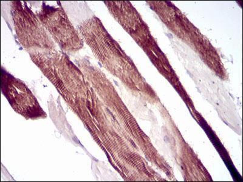 Immunohistochemistry (IHC) image for anti-Villin 1 (VIL1) (AA 1-209) antibody (ABIN4881261)