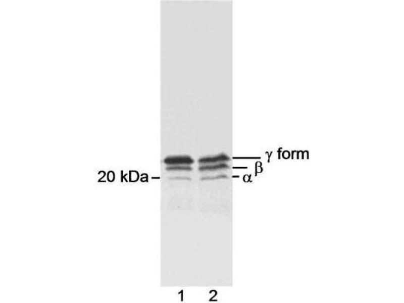 Western Blotting (WB) image for anti-EIF4EBP1 antibody (Eukaryotic Translation Initiation Factor 4E Binding Protein 1) (C-Term) (ABIN152297)
