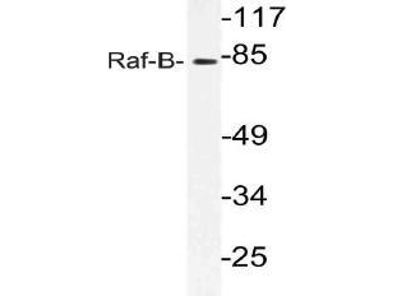 Western Blotting (WB) image for anti-BRAF antibody (V-Raf Murine Sarcoma Viral Oncogene Homolog B1) (ABIN499008)