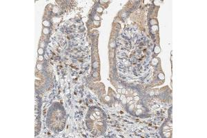 Immunohistochemistry (Paraffin-embedded Sections) (IHC (p)) image for anti-Capping Protein (Actin Filament), Gelsolin-Like (CAPG) antibody (ABIN4287670)