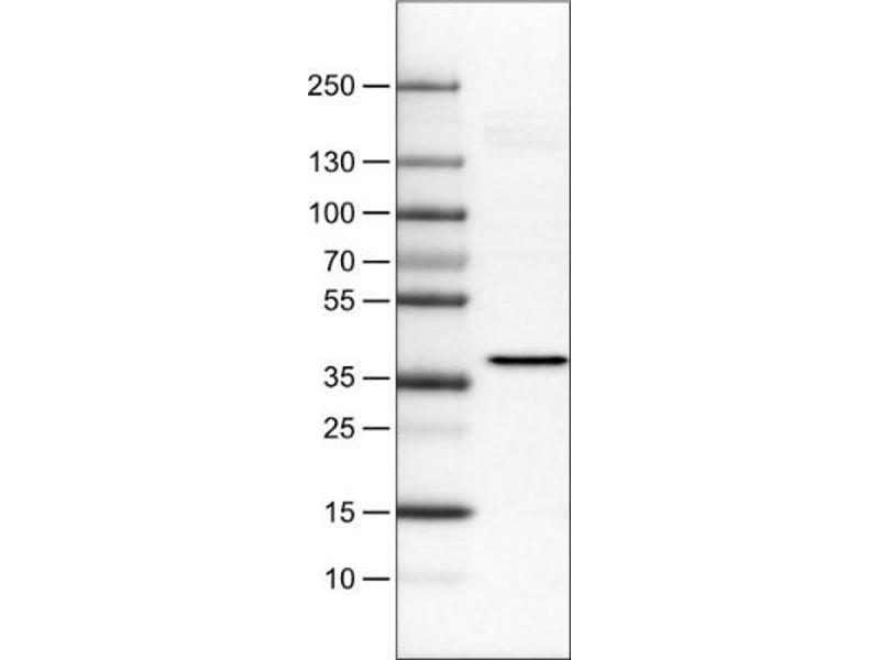 Western Blotting (WB) image for anti-Excision Repair Cross Complementing Polypeptide-1 (ERCC1) antibody (ABIN4309349)