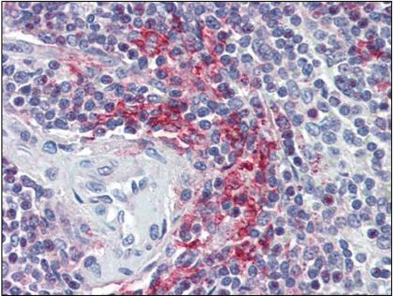 Immunohistochemistry (Paraffin-embedded Sections) (IHC (p)) image for anti-VAV3 antibody (Vav 3 Oncogene) (Internal Region) (ABIN614934)